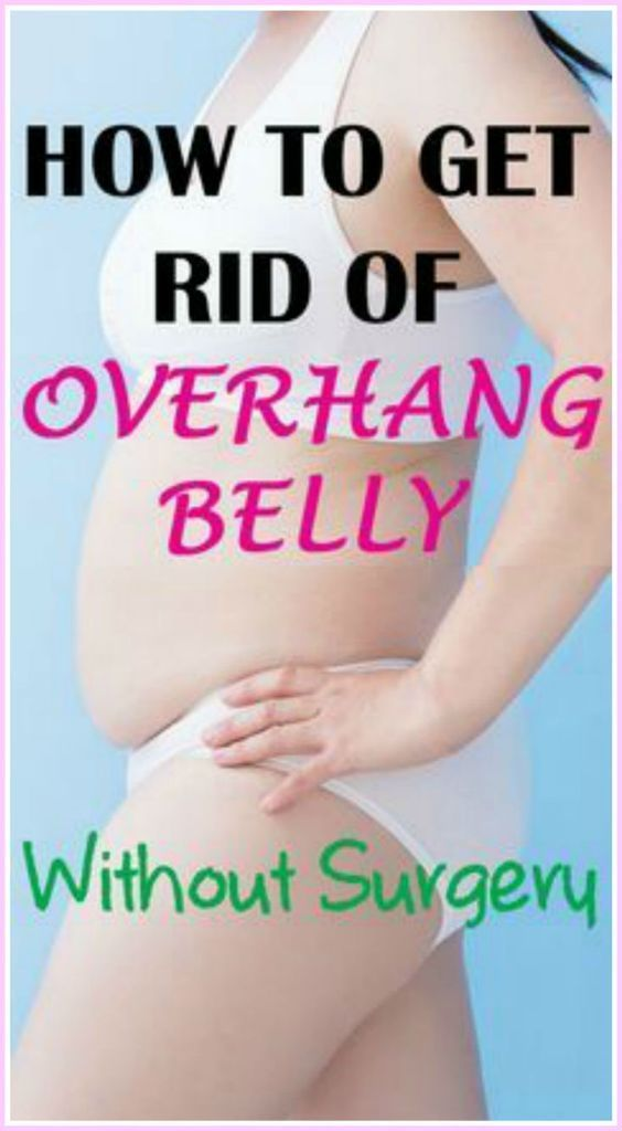 10 Tips On How To Get Rid Of Stomach Overhang Without Surgery