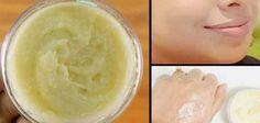 La crema que vamos a presentar hoy ha ayudado a miles de mujeres a mejorar la calidad de su piel.Puede aliviar casi todos los problemas de la piel y hará que tu piel se vea 10 años más joven en sólo 4 días! Esta receta se ha traducido a casi todos los idiomas y se …