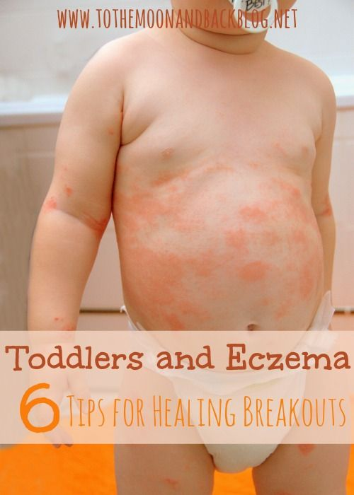 Toddlers and eczema are not a fun pair! Here are six tips to help heal the breakouts!