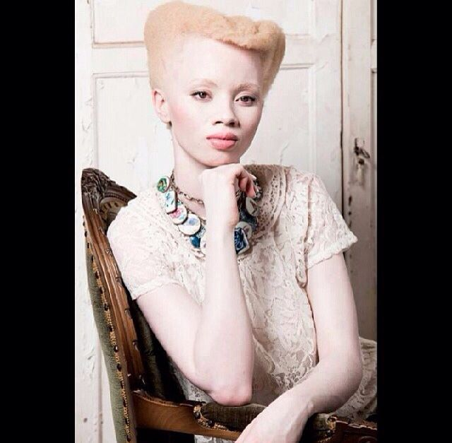 Gorgeous: Natural Skin, Au Natural, Natural Beautiful, Albino Beautiful, Africans American, Blondes Beautiful, Natural Hair, Natural Girls, Africans Beautiful