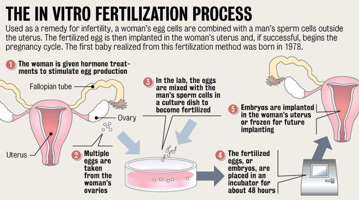 the in vitro fertilization process