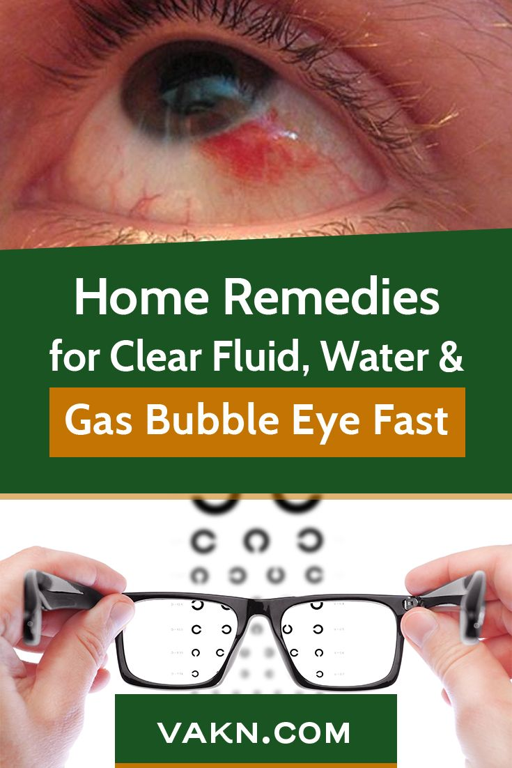 How Do You Get Rid Of A Bubble In Your Eye Fast Bubbles Home Remedies Home Remedy For Cough