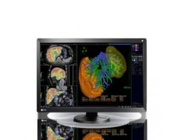 Equipos de resonancia magnética