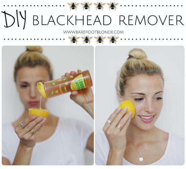 Lemon Honey Blackhead Pores Remover Scrub Recipe _…