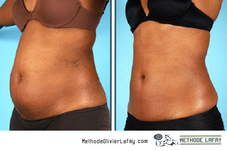 Avant après femme #methodelafay #motivation #musculation www.methodeolivierlafay.com