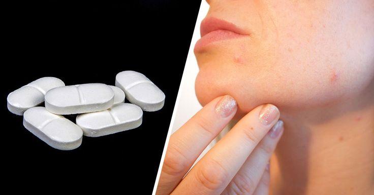 Paracetamol skuteczny nie tylko na ból. Zobacz jak jeszcze możesz go wykorzystać!