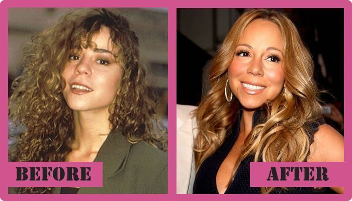 Mariah Carey Plastic Surgery Before And After Mariah Carey Plastic Surgery #Mari…