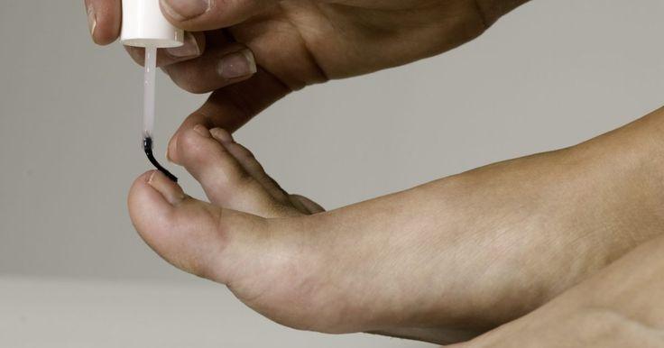 Descoloração de unha e doenças. Doenças e distúrbios que afligem as unhas das mãos e unhas dos pés são comuns. Às vezes, elas resultam em descoloração ou em um crescimento anormal. Algumas causas de doenças das unhas são traumas para as unhas, predisposição genética, infecções e doenças. Para o diagnóstico e tratamento adequado, entre em contato com um profissional de saúde. Um ...