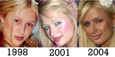Paris Hilton - Avant après de la chirurgie esthétique.