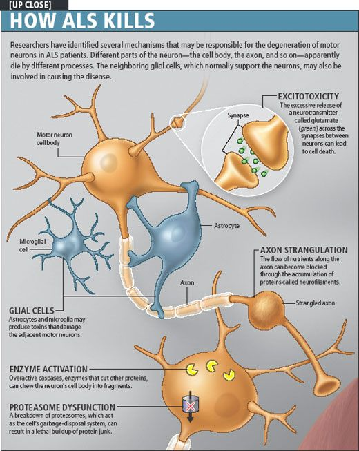 the clinical description of the degenerative disease amyotrophic lateral schlerosis Motor neurons are specialized nerve cells in the brain and spinal cord that normally control motor functions, such as walking, swallowing and breathing however, in patients with motor neuron diseases (mnd) such as amyotrophic lateral sclerosis (als), degeneration of motor neurons results in.