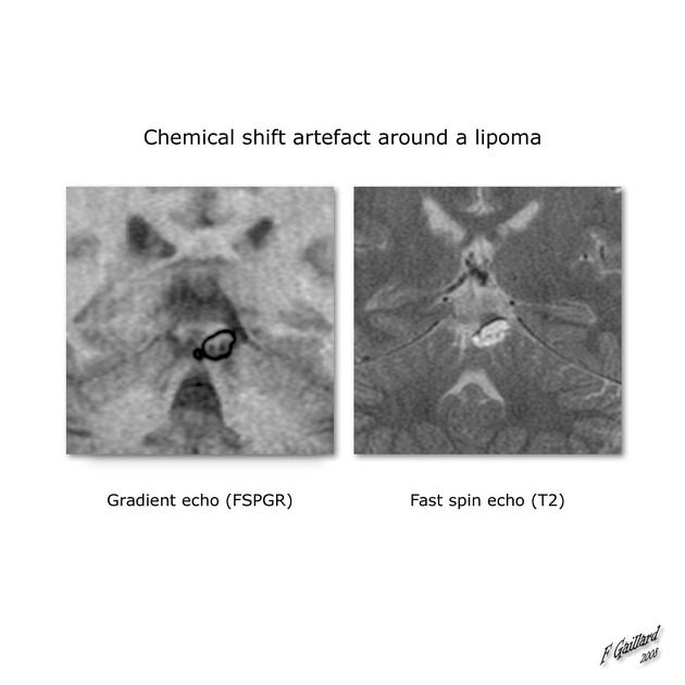 Quadrigeminal plate lipoma | Radiology Case | Radiopaedia.org  Case demonstrating difference between Chemical shift artifact of the first type and the second type