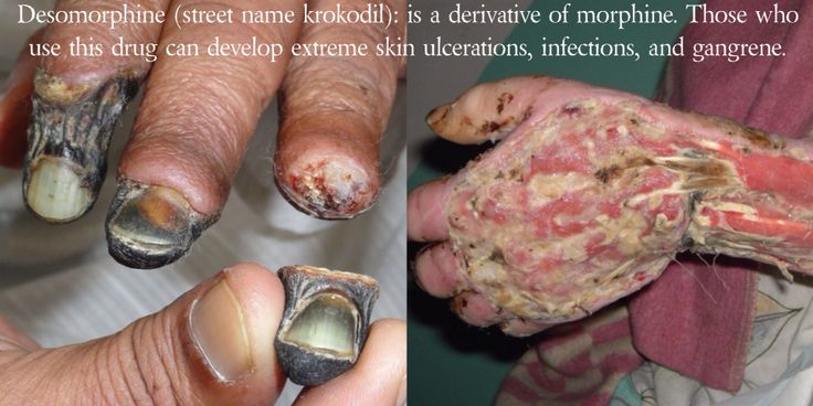 Desomorphine (street name krokodil): is a derivative of morphine with powerful, fast-acting opioid effects, such as sedation and analgesia. Homemade versions start with codeine, and can be cooked similar to meth. Organic solvents such as gasoline, paint thinner, lighter fluid, iodine, hydrochloric acid, and red phosphorus are used in homemade synthesis. Those who inject these caustic agents into their veins can develop extreme skin ulcerations, infections, and gangrene.