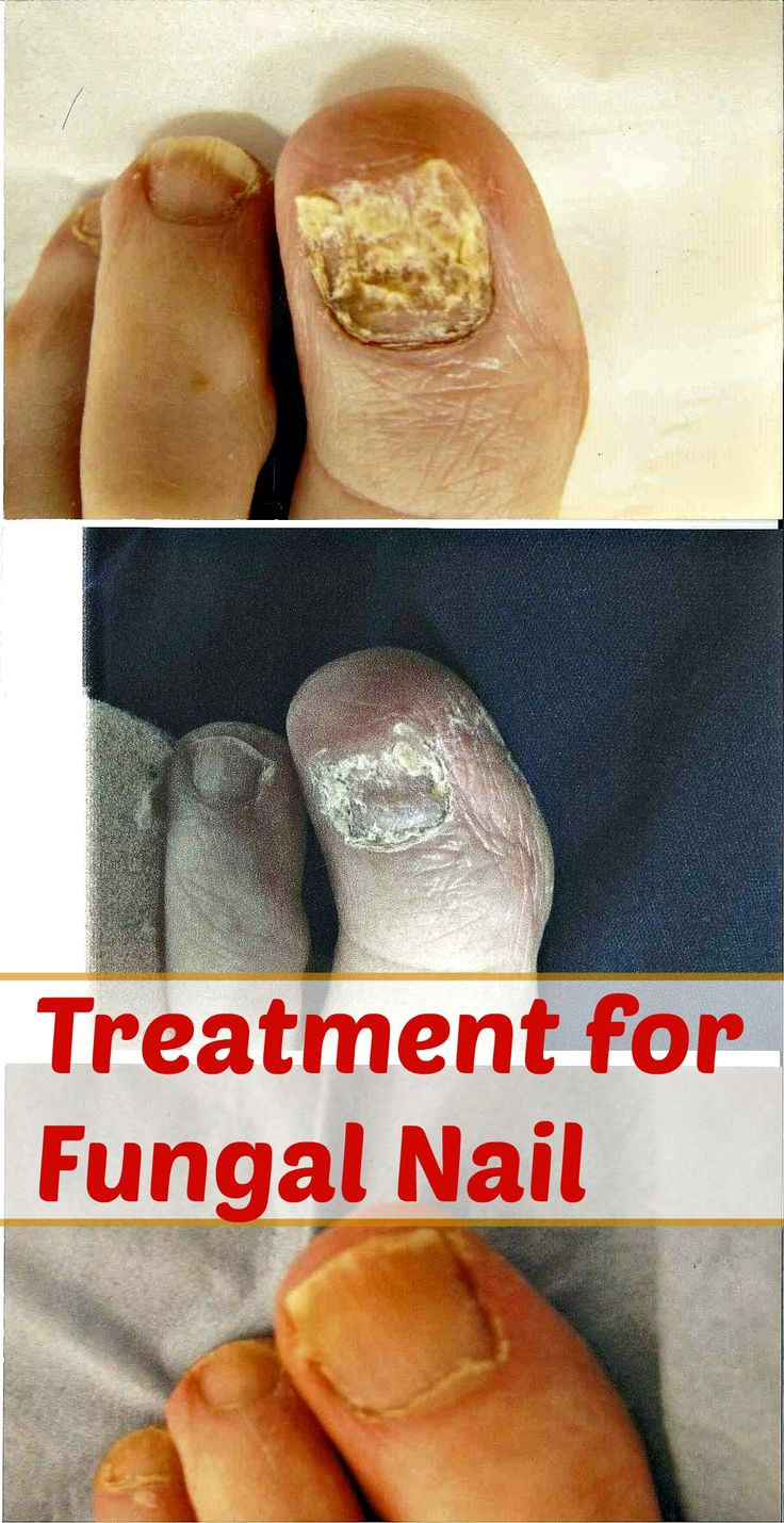 Treatment Options for Fungal Nail Infection