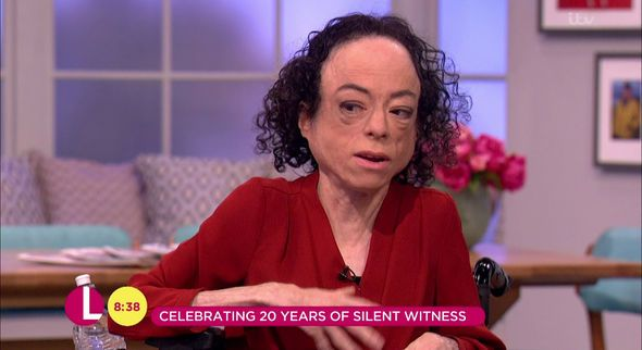 Silent Witness star Liz Carr 'STABBED in head' by 'man armed with scissors' in London - http://buzznews.co.uk/silent-witness-star-liz-carr-stabbed-in-head-by-man-armed-with-scissors-in-london -