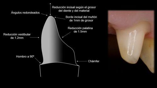 Decálogo de uso del óxido de zirconio en prótesis fija : PROSTHODONTICSMCM : http://prosthodonticsmcm.com