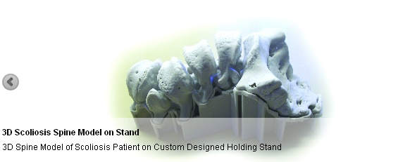 As the globe leader in Anatomically Correct 3D Reference Models, we have the ability to supply our solutions and designs at price points that are budget friendly for the patient and the docto
