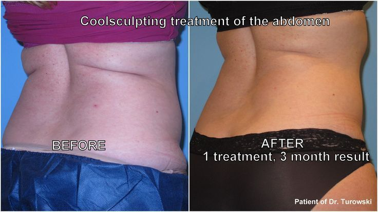 Coolsculpting of abdomen and thighs – remove fat without surgery or liposuction….,  #Abdome…