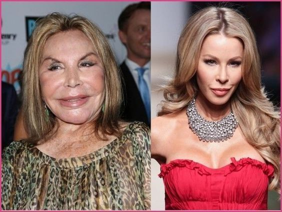 Shocking celebrities before and after – #celebrities #Shocking – Shocking celebr…