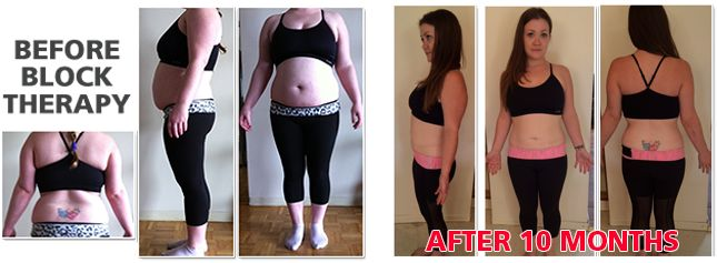 """Block Therapy Helps You Lose Weight    People ask me all the time, """"How can Block Therapy help me lose weight?"""" Well, seeing is believing.  Block Therapy Helps You Lose WeightIn addition to improving her diet, Samantha started Block Therapy in September, 2013. Ten months later you can see the dramatic difference.  Learn more at http://fluidisometrics.com"""