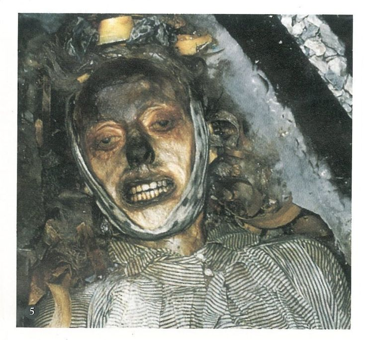 John Torrington's body as exhumed in the 1980s, one of the doomed crew members of the Erebus and Terror. The explorers died of lead poisoning because of improperly sealed cans. Translated into English here: https://translate.google.com/translate?sl=auto&tl=en&js=y&prev=_t&hl=en&ie=UTF-8&u=http%3A%2F%2Fdelapulcraceniza.blogspot.com%2F2013_02_01_archive.html&edit-text=