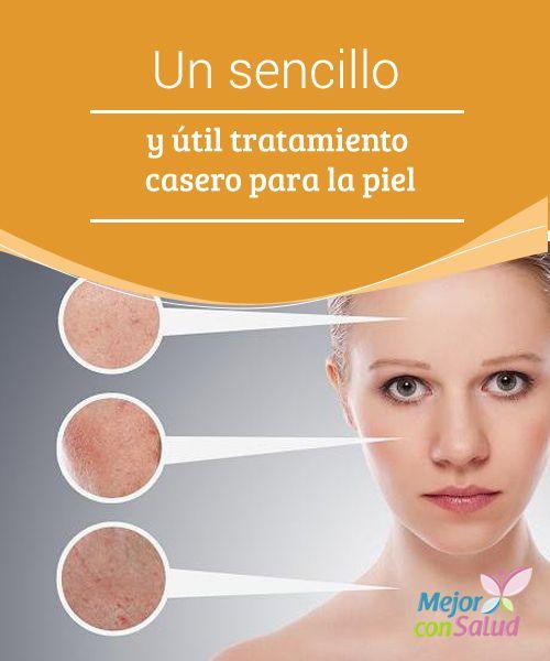 Un sencillo y útil tratamiento casero para la piel  Tratamiento casero para una piel de porcelana. La piel se daña día a día, por ello aplicar un tratamiento casero para la piel es fundamental.