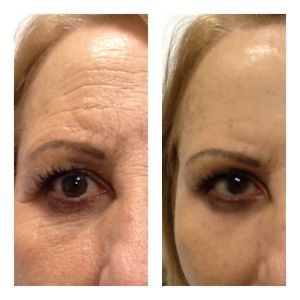 instantly ageless pictures before and after pics , visit my site to order your today :)