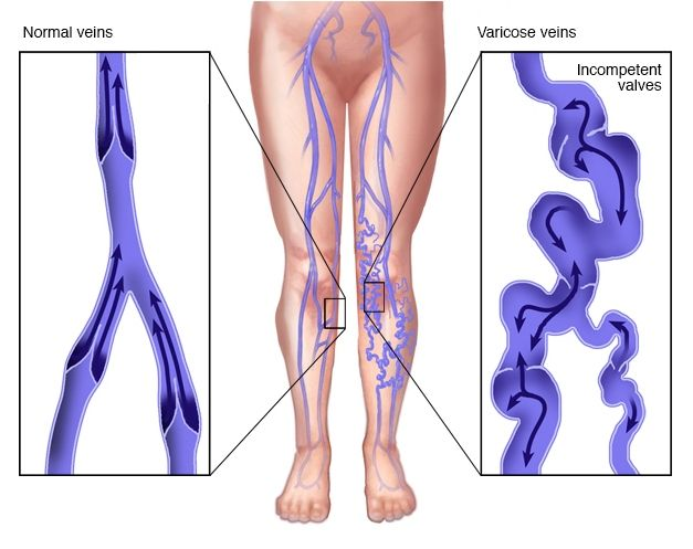 37 best varicose vein treatment images on pinterest | varicose, Cephalic Vein