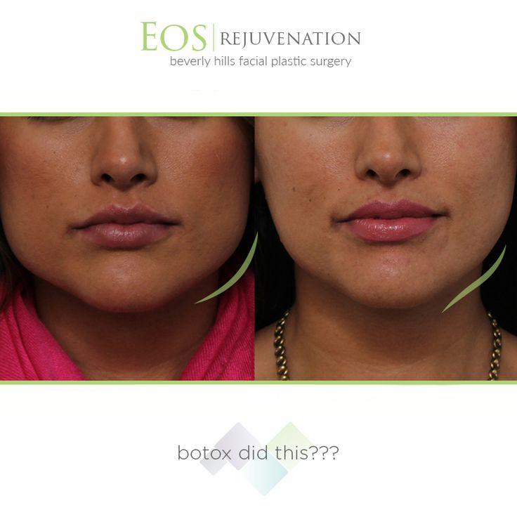 Procedure Of The Week Masseter Botox Cost 675 To 775