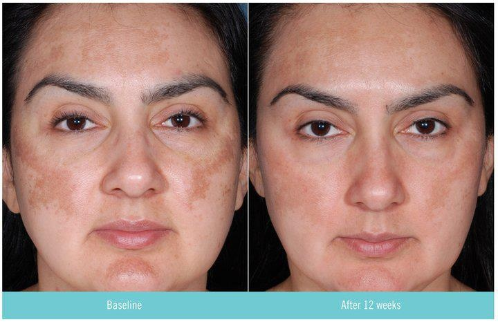 Hydroquinone + retin a = GREATLY improved skin tone (color