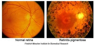 retinitis pigmentosa- hereditary, black pigmentation, gradual degeneration of rods and cones, peripheral vision lost. Swiss cheese VF. results from deafness, mental retardation, cataracts glaucoma and myopic patients