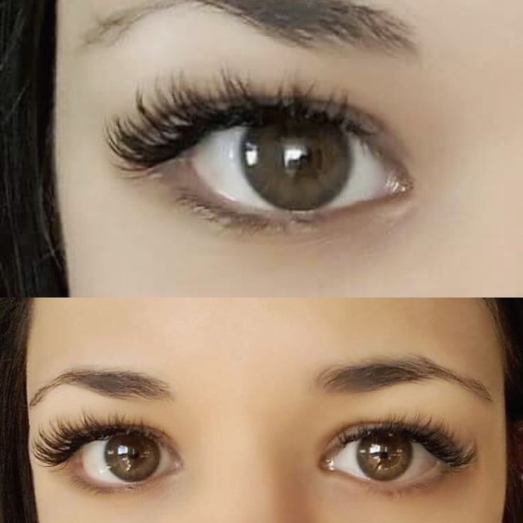 how to get rid of eyelash in eye