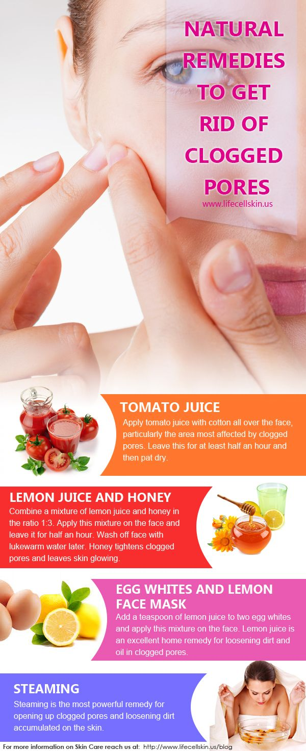 Ultimate Ways To Get Rid Of Clogged Pores Infograp…