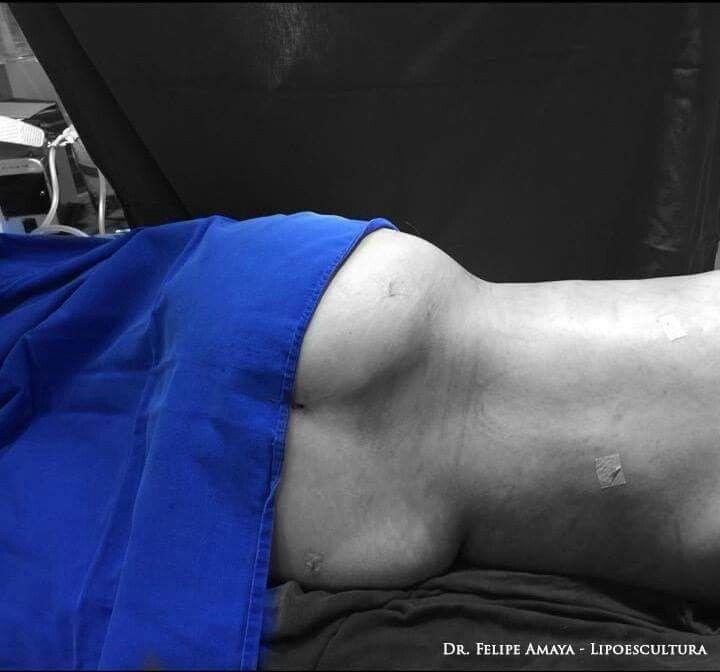 Comparto foto de la cirugía de hoy. Tras 5 litros de lipoaspiración vemos cómo he logrado destacar el área de los glúteos que estaba oculta por la grasa de la espalda. Gran cambio con esta liposucción. Fotos autorizadas por el paciente con fines pedagógicos  www.felipeamaya.com/lipoescultura/ www.felipeamaya.com #InstitutoFelipeAmaya