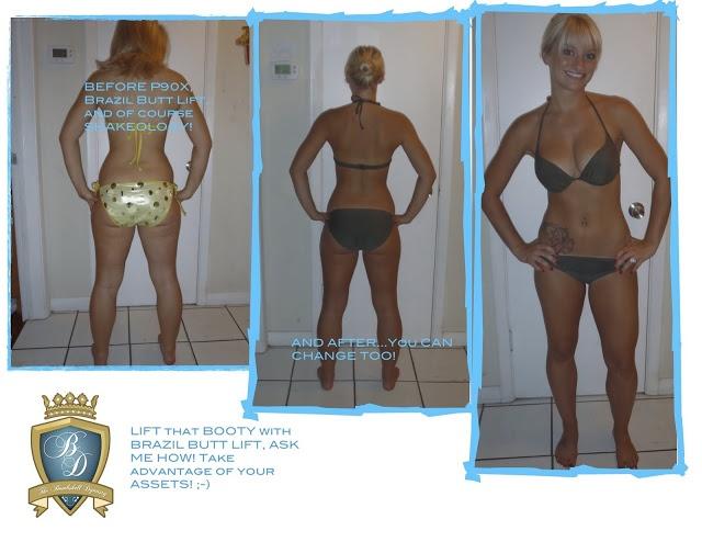 Medi weight loss surprise az