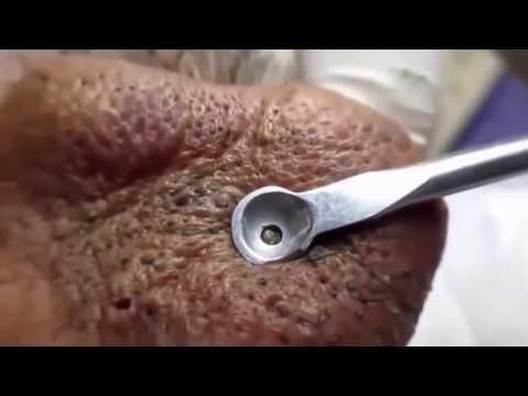 QUE NOJO!! ESPREMENDO CRAVOS DE 25 ANOS! Cravos enormes e nojentos no nariz Que Nojo! - YouTube