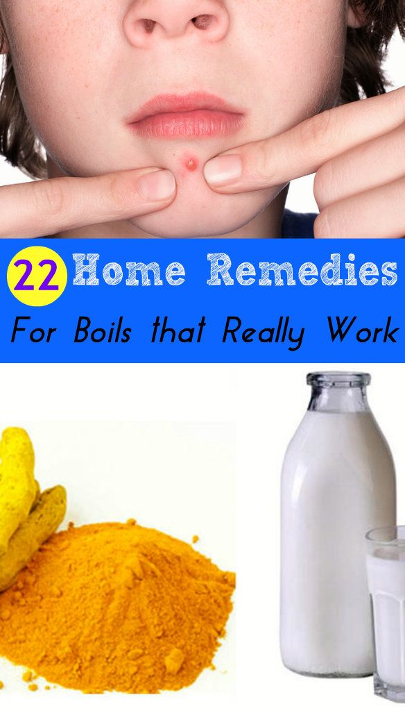 how to get rid of boils on buttocks at home