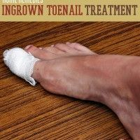 An ingrown toenail can be an incredibly painful and annoying ailment to suffer from.  Aside from the discomfort, ingrown toenails also often get infected.  These infections cause swelling and inflammation, making the toe even more painful.  We have some great home remedies for removing the ingrown toenail, making it grow straight again,