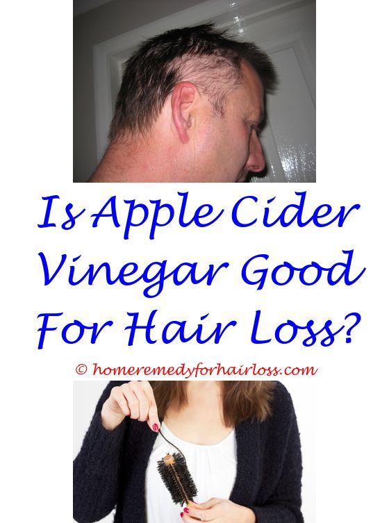 apri side effects hair loss - prp treatment for hair loss in miami.can 5 htp cause hair loss can topical clindamycin cause hair loss hair loss treatment injection 1630092434