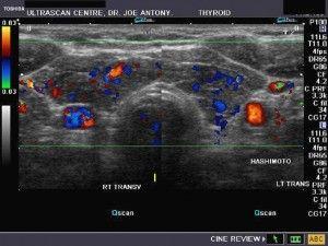hashimotos thyroiditis ultrasound
