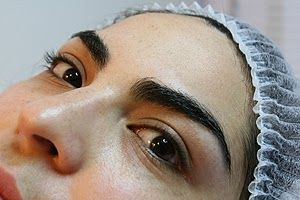 Microimplante, la alternativa para tener cejas más pobladas  #portadadelmundo