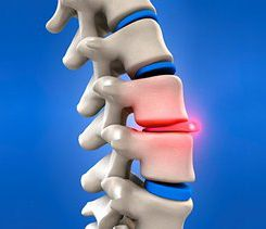 Prolapsed Disc in Bangalore| Slip Disc, Neck Pain and Lower Back Pain Treatment in Bangalore