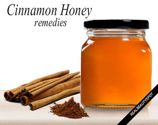 Home+remedies+using+Cinnamon+and+honey
