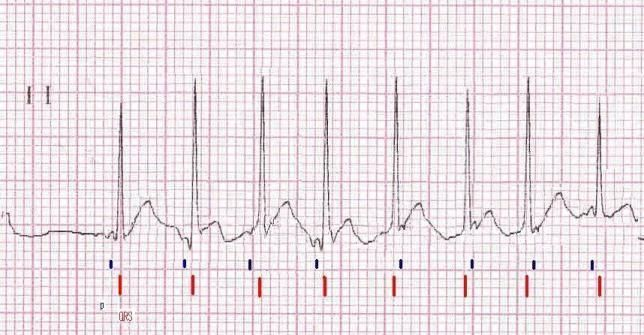 "Lead II rhythm strip of a surface ECG from a patient with postoperative JET. Atrial activity (P) is marked with blue lines and ventricular depolarization (QRS) is marked in red. Note the narrow QRS complexes due to their origin at the AV junction. Also note the dissociation between atrial and ventricular depolarizations where some of the QRS complexes seem to ""follow"" the P waves. However, this is not possible because the PR intervals are exceedingly short to allow conduction. In addition…"