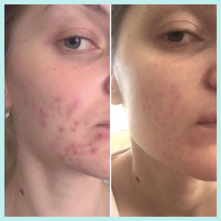 """So happy with this result. real-u Beauties, be persistent, even if that means using product for few months, it needs time for new pimples to stop coming out and deep acnes to totally clear as every skin is different. I am so thrilled I didn't  give up. I have been using real u for about 4 months now, just started a new package of the 3 step product and I have definitely committed to real-u. Thank you so much 😊😀"" - Aleksandra"