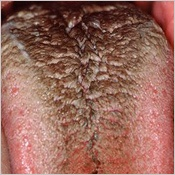 Hairy Black tongue is caused by bad oral hygiene, mouth breathing, tobacco, antibiotics or certain foods