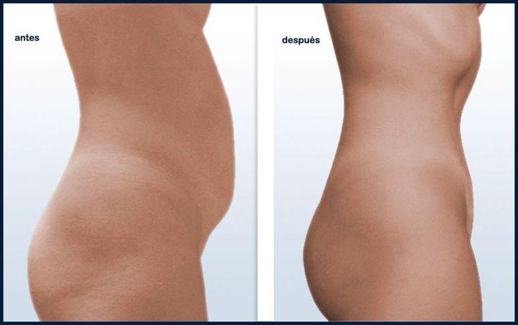abdomen plano y sano