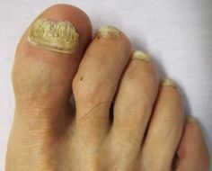 Home Remedies for Toenail Fungus Treatment Toenail fungus is a very common problem among people. Toenail fungus is also known as Onychomycosis. Toenail fungus is an infection that starts as yellow or white spot under the tip of your toenail or fingernail. Toenail fungus can hurt you. Due to fungal infection in toenail your nail turns ... #CureToenailFungusFast, #GetReliefFromToenailFungus, #GetRidOfToenailFungusAtHome, #GetRidOfToenailFungusNaturally, #HomeRemediesForToena