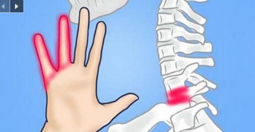 6 conditions qui pourraient être à l'origine de vos picotements au niveau des bras ou des jambes