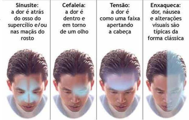Diferença de dores de cabeça