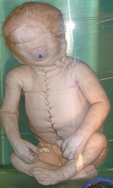 Cyclopia - A birth defect